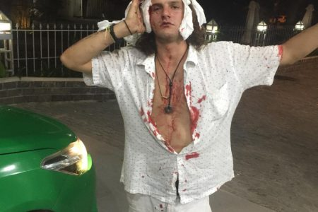 Người Pháp đi du lịch Việt Nam bị xe ôm cướp tiền và tấn công chảy máu đầu phải khâu 11 mũi