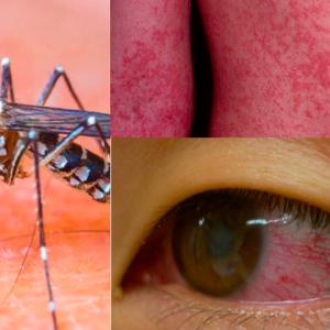 Bộ Y tế: Virus Zika hoàn toàn có khả năng xâm nhập vào Việt Nam