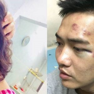 Musiker und Besucher eines Musikevents in Vietnam von der Polizei angegriffen und schwer misshandelt