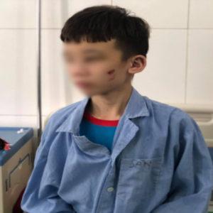 """Việt Nam: Chủ bạo hành – Trẻ em bị ăn """"chày đập đá"""""""